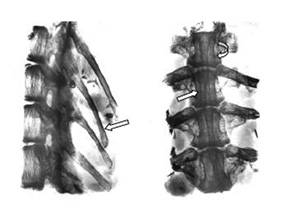 Radiographic images of rabbit thoracic spine in lateral and frontal projections. The model of the rotational T